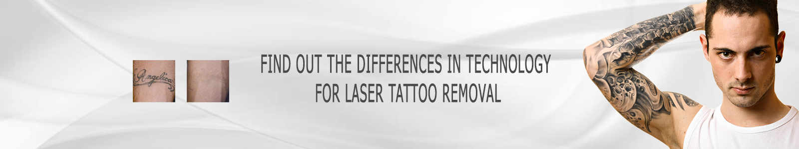 Tattoo Removal Technology