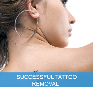 brisbane tattoo removal laser tattoo removal brisbane