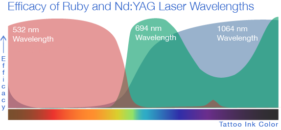 Wavelengths of Laser for Tattoo Removal
